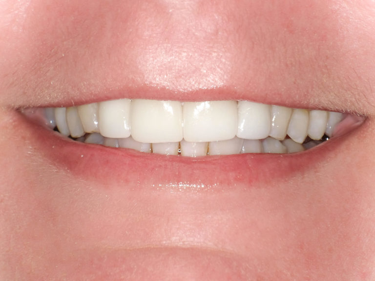 Ceramic Crowns on the upper four front teeth after