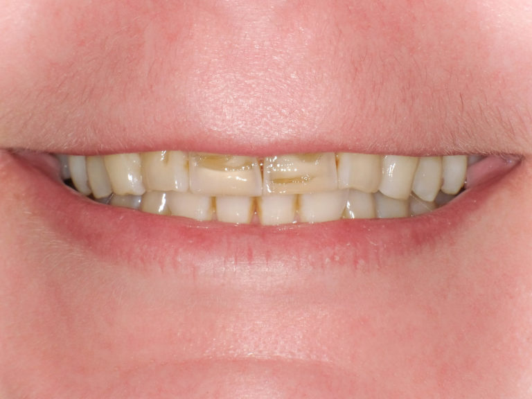 Ceramic Crowns on the upper four front teeth