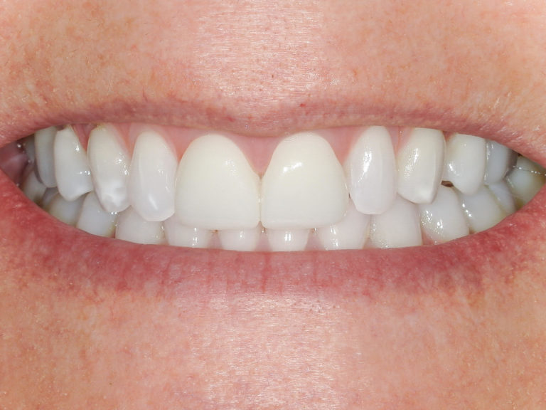 was a full Invisalign case, veneers on the two front teeth, and at home teeth whitening with bleaching trays after