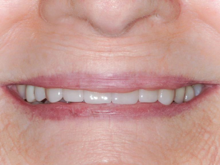 Smile makeover with full ceramic crowns on the upper front six teeth after