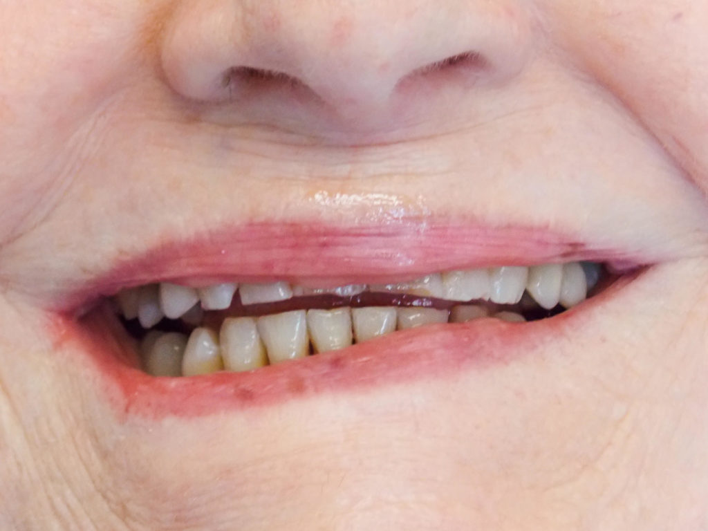 Smile makeover with full ceramic crowns on the upper front six teeth before